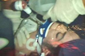Тело Майкла Джексона шокировало патологоанатомов