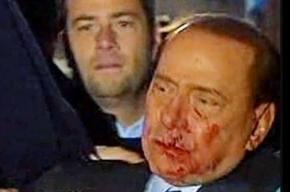 На Сильвио Берлускони напал психопат и ударил его сувенирной статуэткой