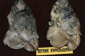 Неформальные музеи Петербурга: калоша Лёли и Миньки, легкие курильщика и памятник дождевому червю