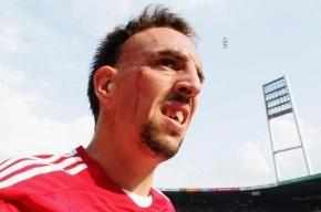 «Бавария» взяла у «Зенита» реванш  за поражение-2008