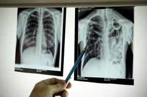 В Петербурге почти треть больных туберкулезом – это мигранты