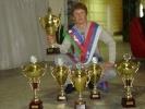 Чемпиону России по брейк-дансу ампутировали ногу: Фоторепортаж