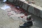 Теракт в Махачкале: Фоторепортаж