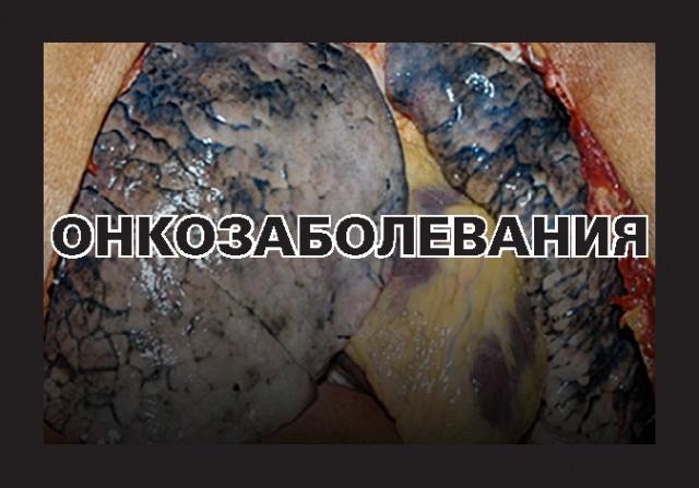 SmokingKills2_Page_02.jpg