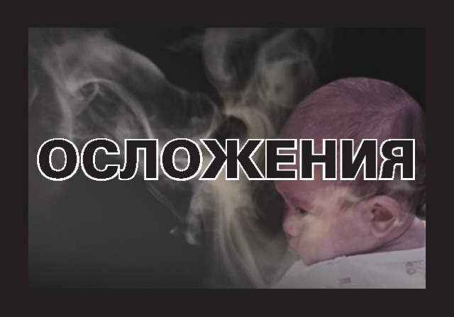 Устрашающие картинки на пачках сигарет: Фото