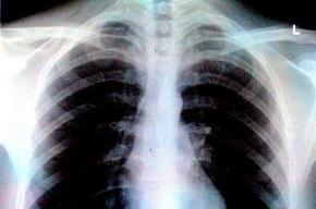 В «Народном» кроме крыс нашли еще и туберкулез