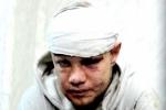 Водителя, задавившего семь человек на Минской улице, положили в больницу