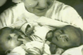 Сиамские близнецы Зита и Гита пришли в «Пусть говорят» и рассказали, как им живется по отдельности