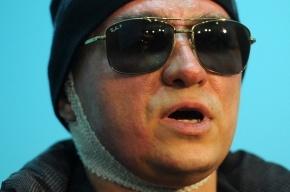 Исполнитель нападения на Сергея Филина объявлен в розыск
