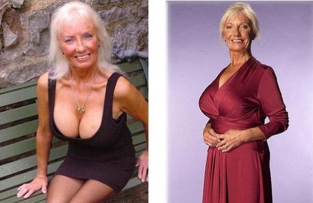 Британская пенсионерка увеличила себе грудь и собралась замуж, следуя воле покойного мужа