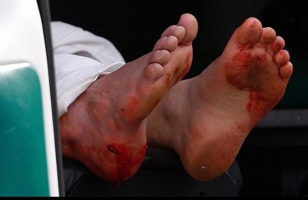 После теракта в Бостоне хирурги ампутировали ноги уже 10 пострадавшим