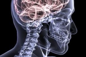 Итальянский хирург проведет операцию по пересадке головы