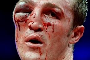 Промоутер Лебедева признал, что врачу запретили останавливать его бой с Джонсом
