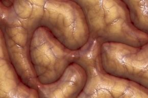 Ученые вырастили миниатюрный человеческий мозг в чашке Петри