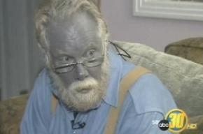 Американец с синим лицом «папа Смурф» умер в США