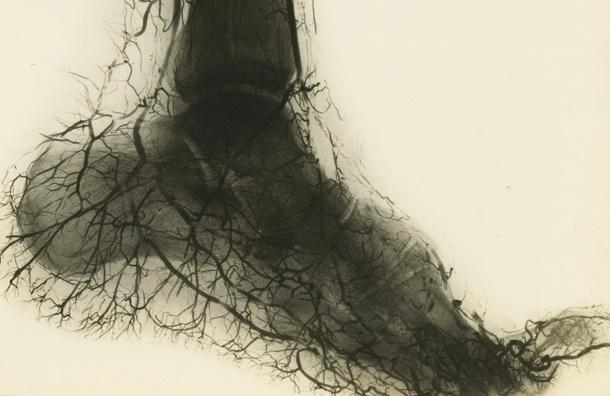 Возникновение тромбов в сосудах можно избежать