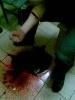 Фоторепортаж: «Заключенные калининградской колонии порезали вены и зашили рты, пытаясь добиться послабления режима. Фото: Анюта Шихиева»