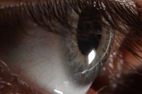 Гражданину Кот-д'Ивуара выбили глаз в драке на западе Москвы