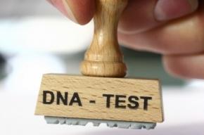 Ученые нашли ген, отвечающий за забывчивость и рассеянность