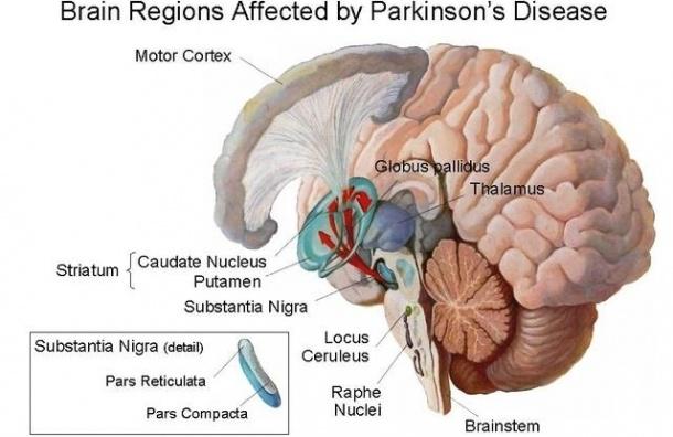 Симптомы болезни Паркинсона можно распознать за 10-15 лет до ее активного развития
