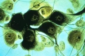 Нервные клетки восстанавливаются, доказано учеными