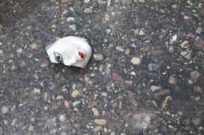 В Ленобласти девочка получила тяжелую травму головы на детской площадке