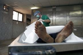 Студент отрезал ногу умершей женщины в морге Петербурга