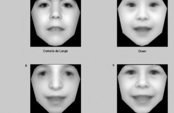 Ученые научили компьютер ставить диагноз по фотографии