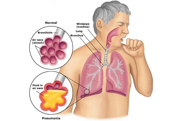 Пневмония: не пропустить симптомы и лечить правильно