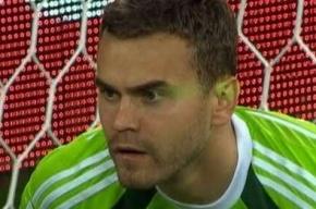 Капелло: Акинфеева в момент решающего гола ослепили лазерной указкой