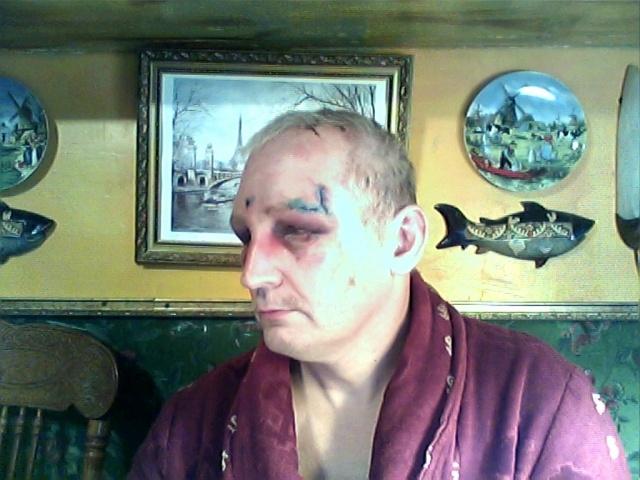 Глава ТСЖ избил жителя, протестующего против строительства мансарды: Фото