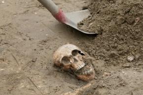 Во Франции найден древнейший скелет больного синдромом Дауна
