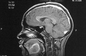 После 40 лет мозг человека начинает уменьшаться до «детских» размеров