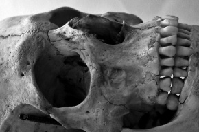 В Петербурге в подвале дома нашли скелет человека