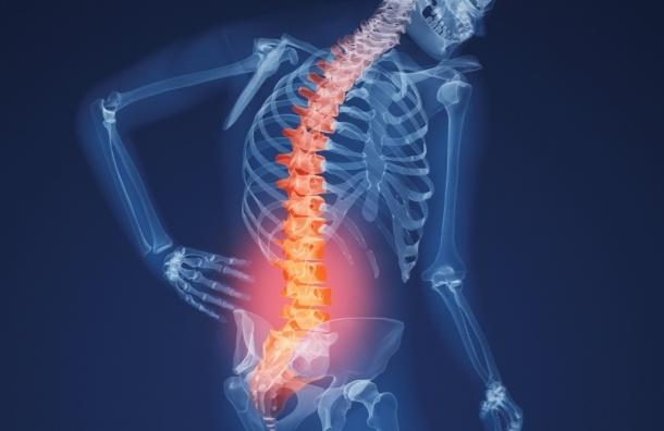 Остеопороз: мужчинам тоже нужно укреплять кости