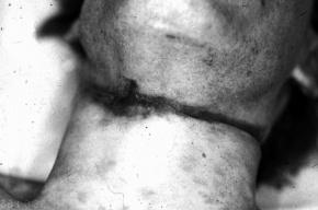 Труп полуразложившегося повешенного мужчины нашли в старом сарае в Ленобласти