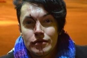 ЛГБТ-активиста избили в петербургском метро за «радужный» шарф