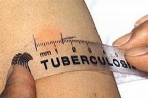 Юная жительница Смоленска умерла во время диагностики в тубдиспансере