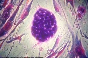 Человеческие эмбрионы начнут модифицировать британские врачи