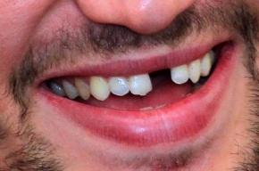 Пьяный ростовчанин оставил без зубов трех гаишников