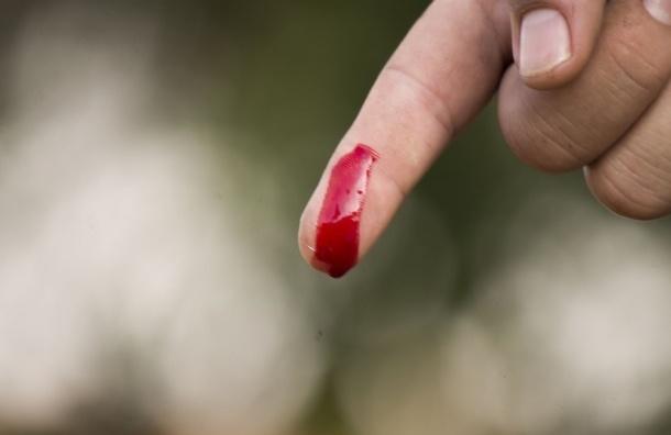 Припозднившаяся женщина укусила насильника за палец на Кубинской
