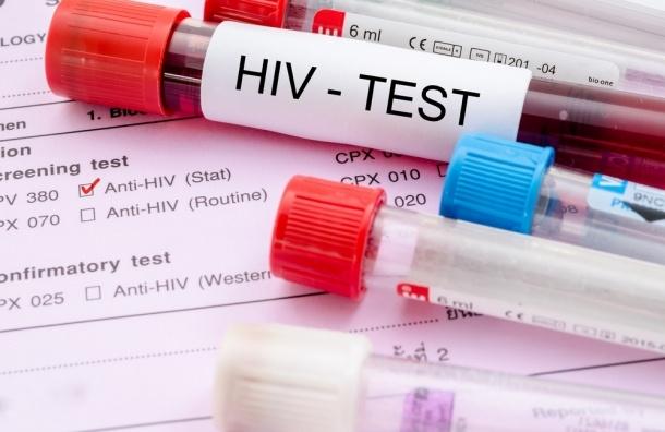 Российский Минздрав может начать ставить на учет ВИЧ-инфицированных