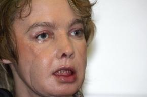 Первая женщина, которой пересадили лицо, умерла во Франции
