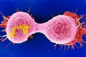 Уничтожающую неуязвимый рак молекулу открыли российские ученые