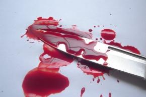 Таксист ударил петербурженку ножом и отобрал iPhone