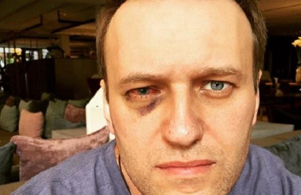 Навальный вернулся в Россию после лечения в Испании
