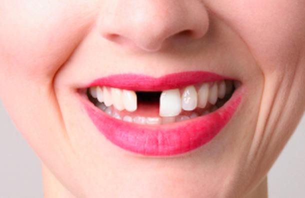 Стоматолога заудаление 22 зубов поместили под подписку
