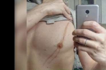 Петербуржца избила жена залайки другим женщинам