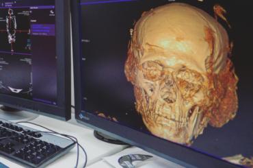 Мумию из Эрмитажа проверили на томографе