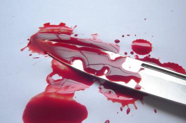 Студент в Москве ударил ножом школьника
